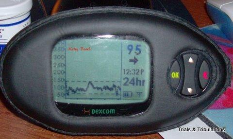 Dexcom 24 hour flatline