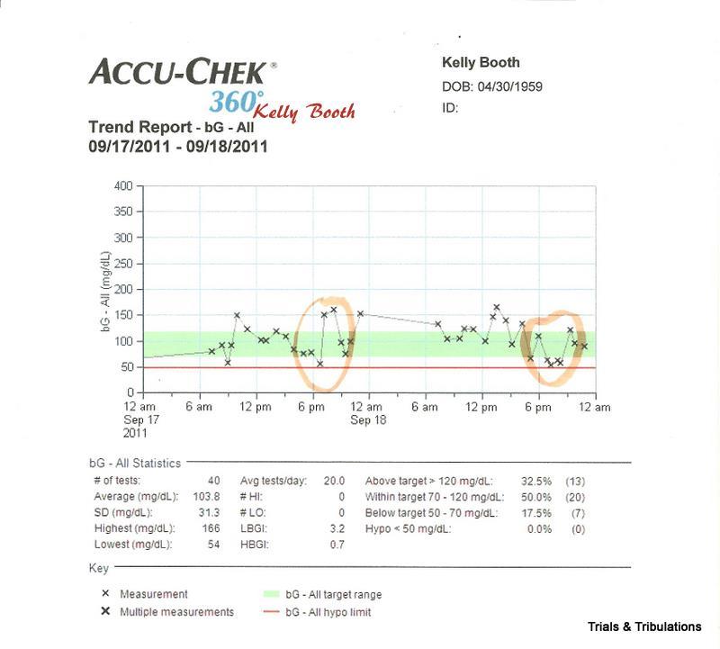 Accu-Chek 360 trend graph
