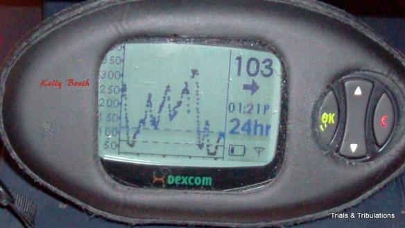 Dexcom Rollercoaster