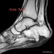 MRI of foot